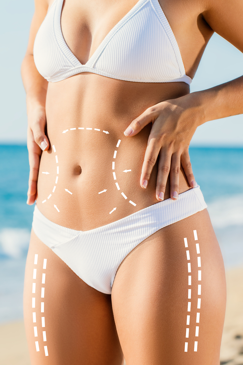 TruSculpt: The Advantages Of Using This System