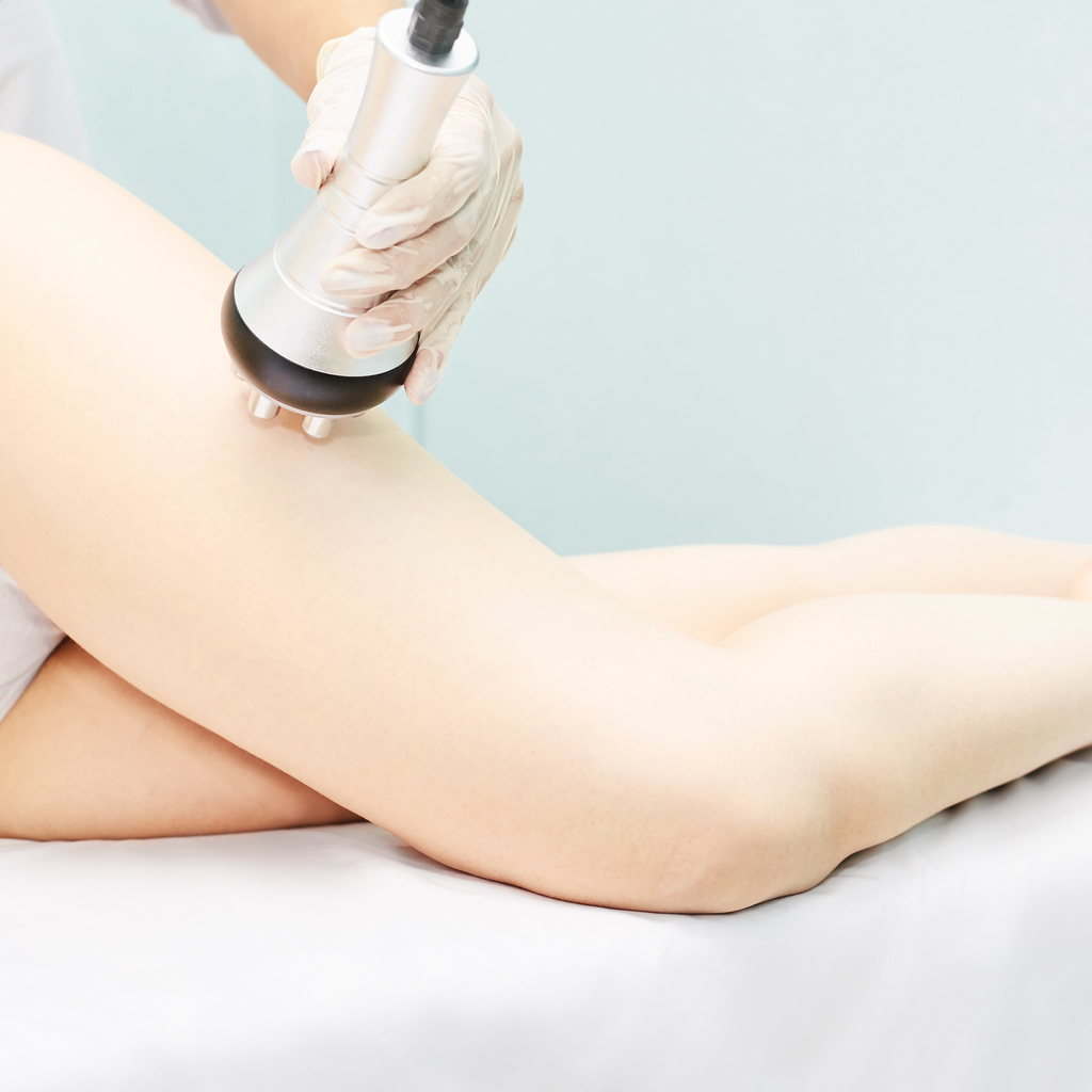 Perfect body radio treatment. Woman at spa procedure. Doctor hand and girl body. RF cosmetology lifting. Legs