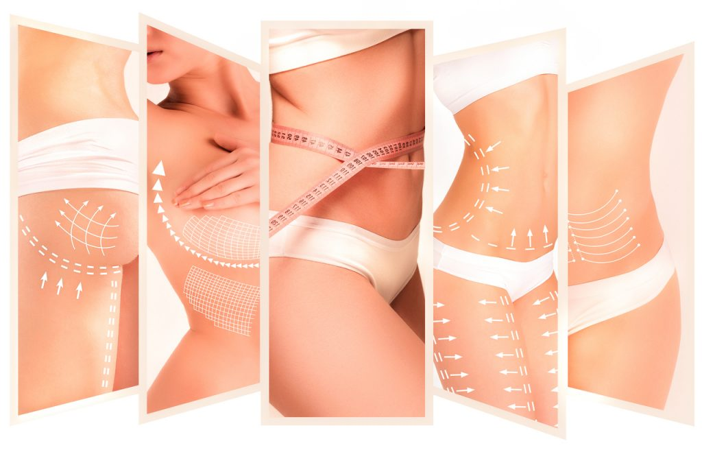 The cellulite removal plan. White markings on young woman body