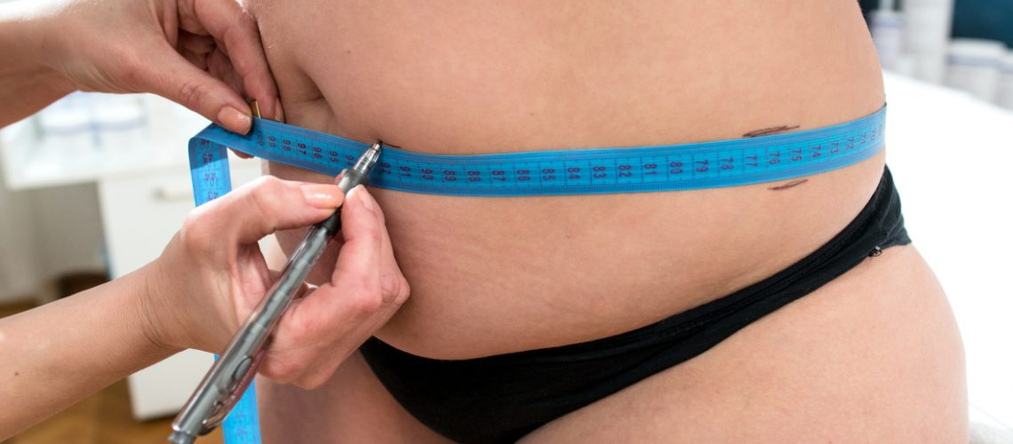 Doctor examine woman waist measure with tape